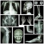 musculoskeletal x-ray interpretation GUIDE 1.0
